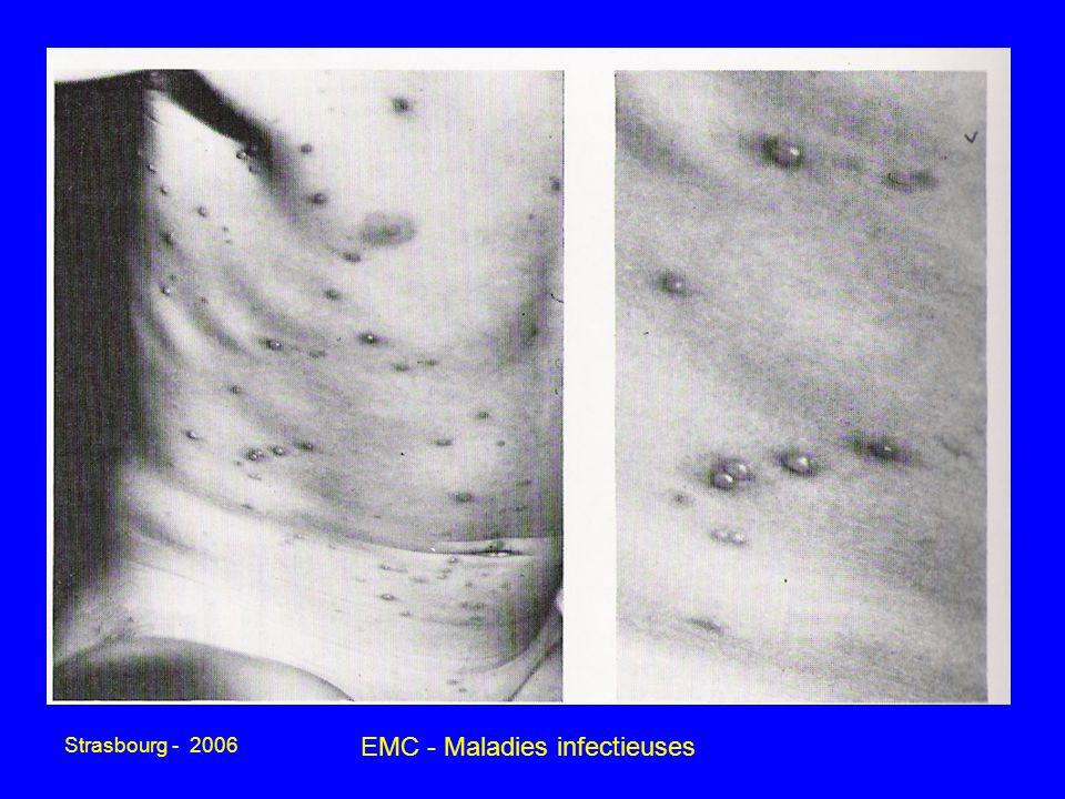 Strasbourg - 2006 EMC - Maladies infectieuses