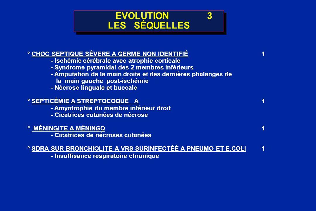 EVOLUTION3 LES SÉQUELLES ° CHOC SEPTIQUE SÉVERE A GERME NON IDENTIFIÉ1 - Ischémie cérébrale avec atrophie corticale - Syndrome pyramidal des 2 membres