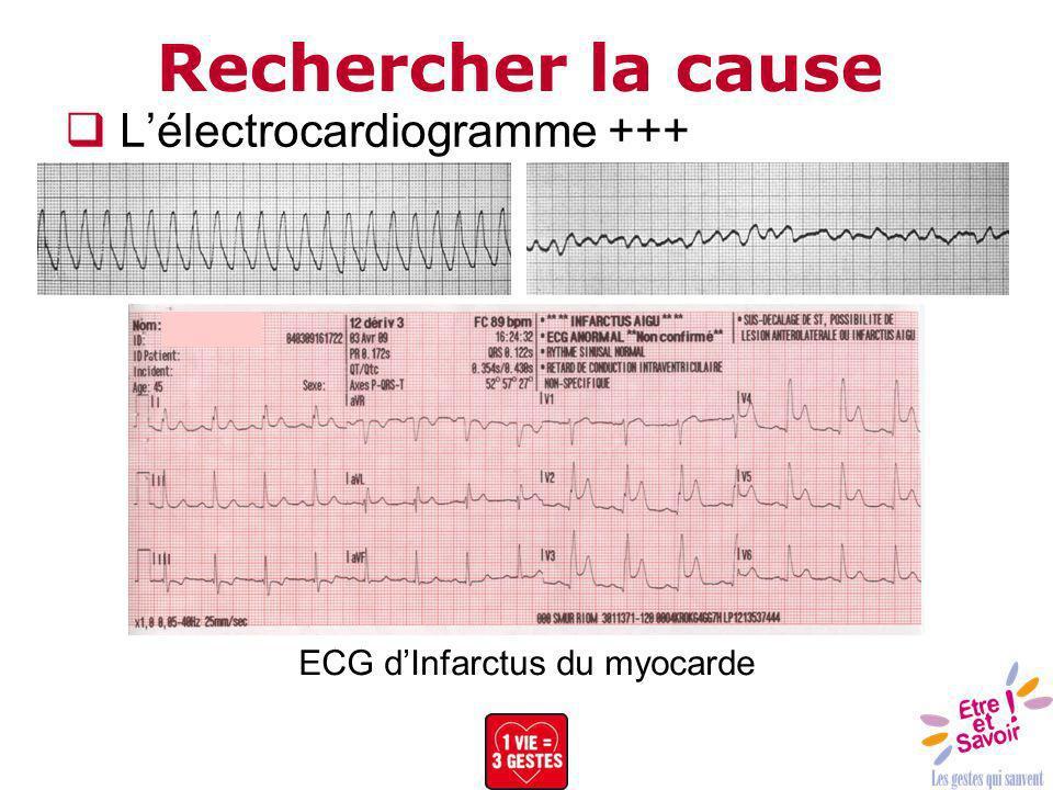 Rechercher la cause Lélectrocardiogramme +++ ECG dInfarctus du myocarde