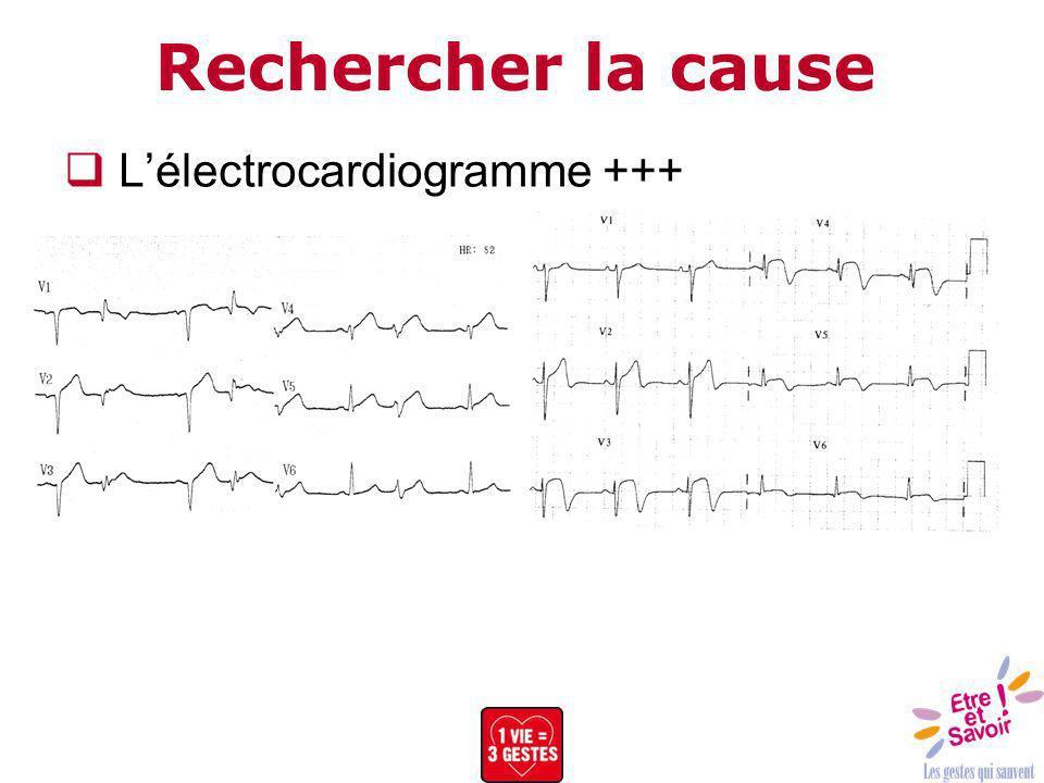 Rechercher la cause Lélectrocardiogramme +++