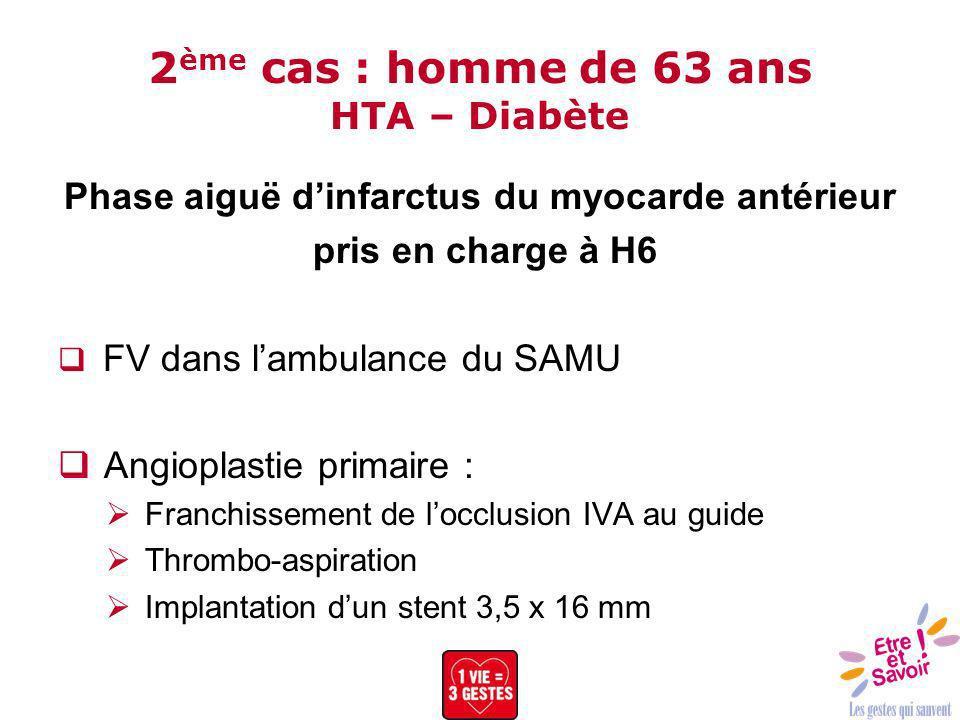 2 ème cas : homme de 63 ans HTA – Diabète Phase aiguë dinfarctus du myocarde antérieur pris en charge à H6 FV dans lambulance du SAMU Angioplastie pri