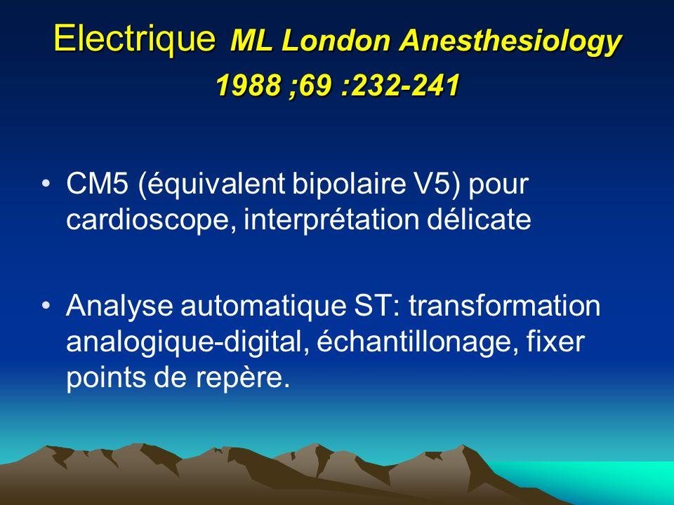 Electrique ML London Anesthesiology 1988 ;69 :232-241 CM5 (équivalent bipolaire V5) pour cardioscope, interprétation délicate Analyse automatique ST: transformation analogique-digital, échantillonage, fixer points de repère.