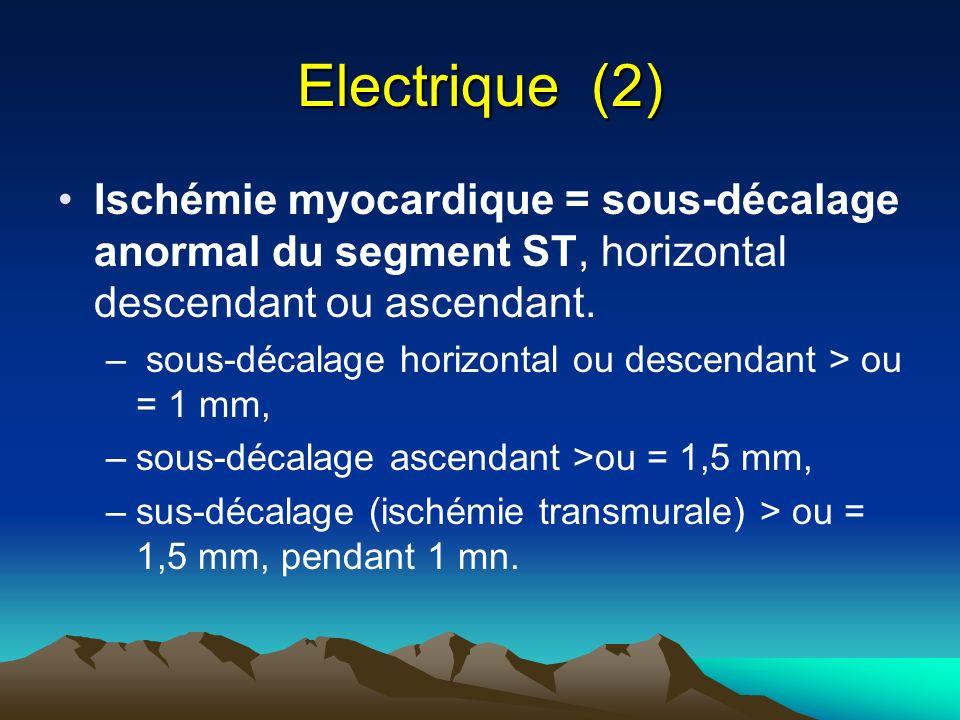 Electrique (2) Ischémie myocardique = sous-décalage anormal du segment ST, horizontal descendant ou ascendant. – sous-décalage horizontal ou descendan