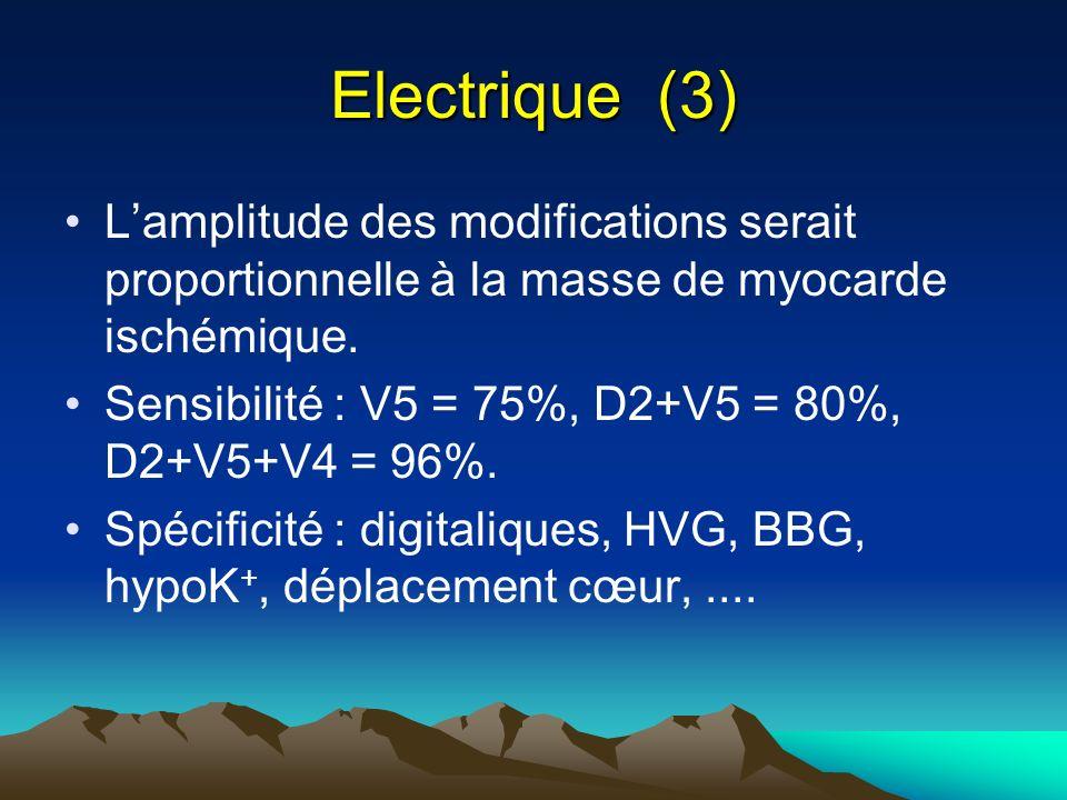Electrique (3) Lamplitude des modifications serait proportionnelle à la masse de myocarde ischémique. Sensibilité : V5 = 75%, D2+V5 = 80%, D2+V5+V4 =