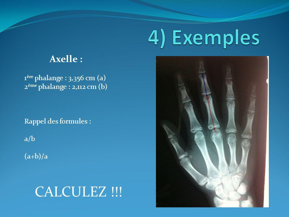 Axelle : 1 ère phalange : 3,356 cm (a) 2 ème phalange : 2,112 cm (b) Rappel des formules : a/b (a+b)/a CALCULEZ !!!