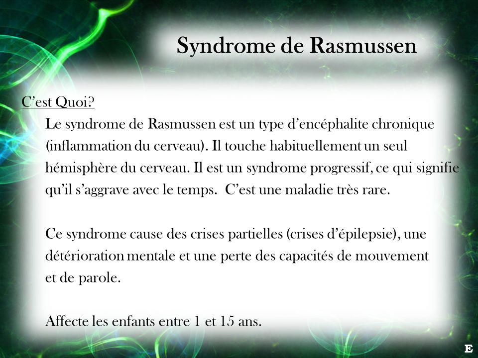 Syndrome de Rasmussen Cest Quoi? Le syndrome de Rasmussen est un type dencéphalite chronique (inflammation du cerveau). Il touche habituellement un se
