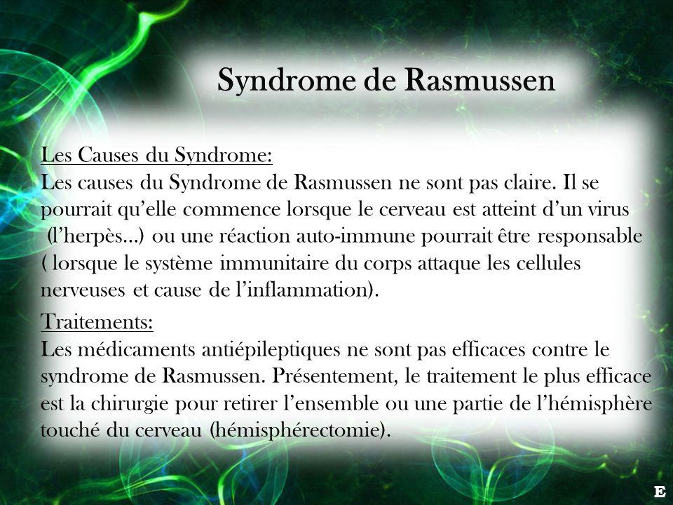 Syndrome de Rasmussen Les Causes du Syndrome: Les causes du Syndrome de Rasmussen ne sont pas claire. Il se pourrait quelle commence lorsque le cervea