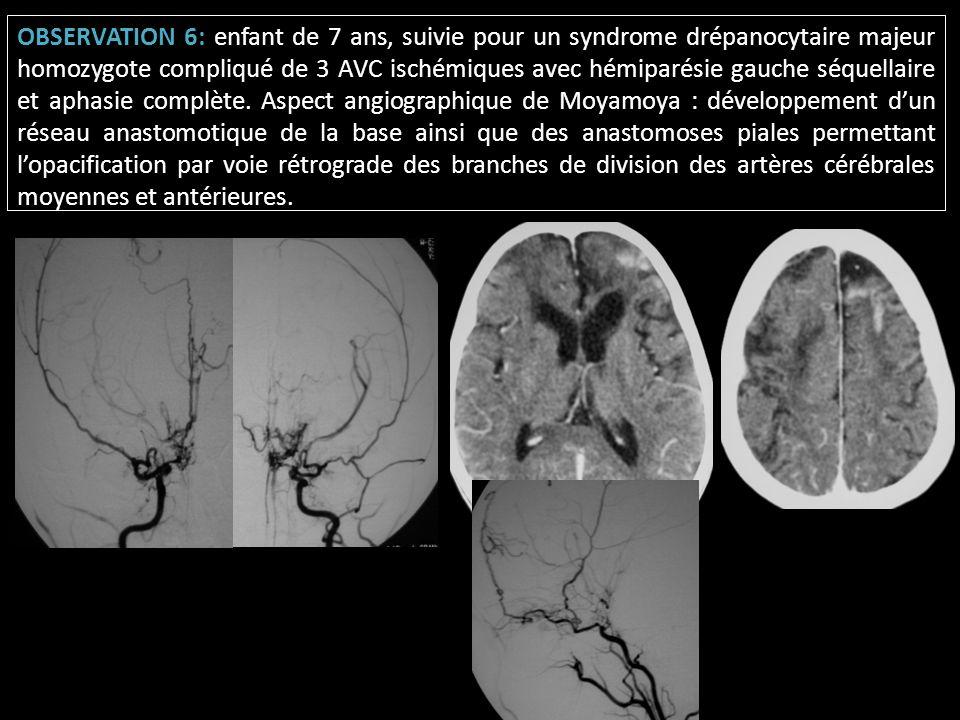 OBSERVATION 6: enfant de 7 ans, suivie pour un syndrome drépanocytaire majeur homozygote compliqué de 3 AVC ischémiques avec hémiparésie gauche séquel
