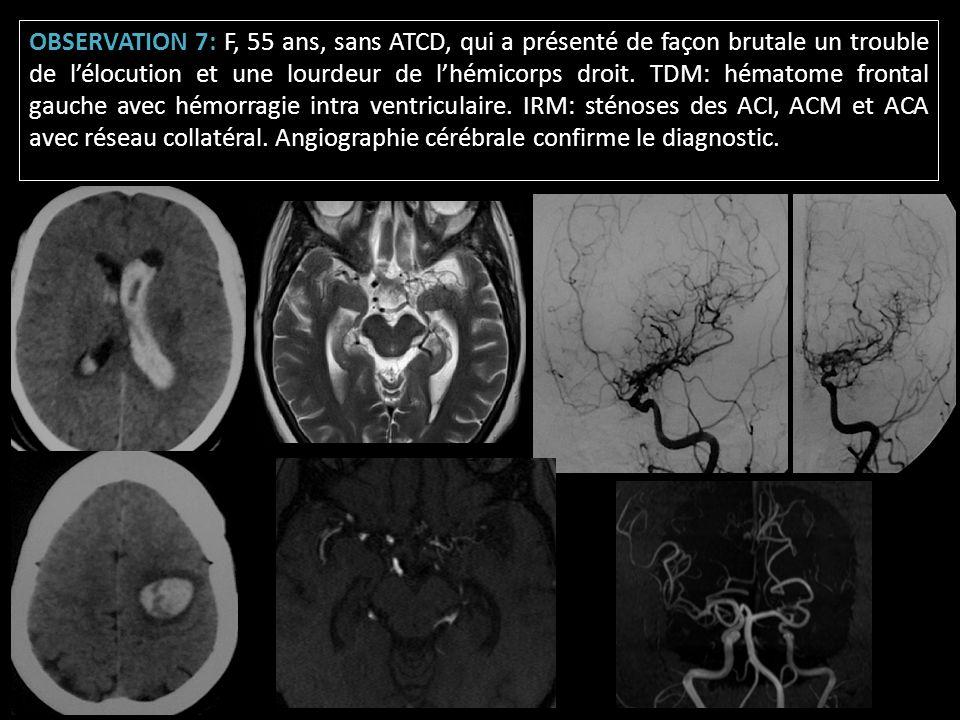 OBSERVATION 7: F, 55 ans, sans ATCD, qui a présenté de façon brutale un trouble de lélocution et une lourdeur de lhémicorps droit. TDM: hématome front