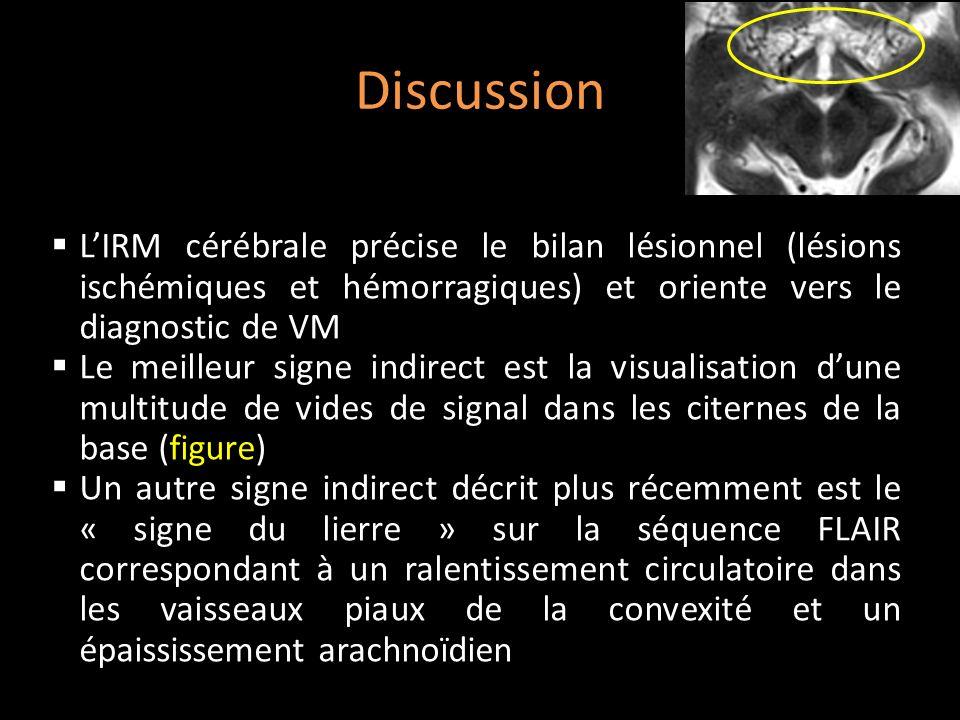 Discussion LIRM cérébrale précise le bilan lésionnel (lésions ischémiques et hémorragiques) et oriente vers le diagnostic de VM Le meilleur signe indi