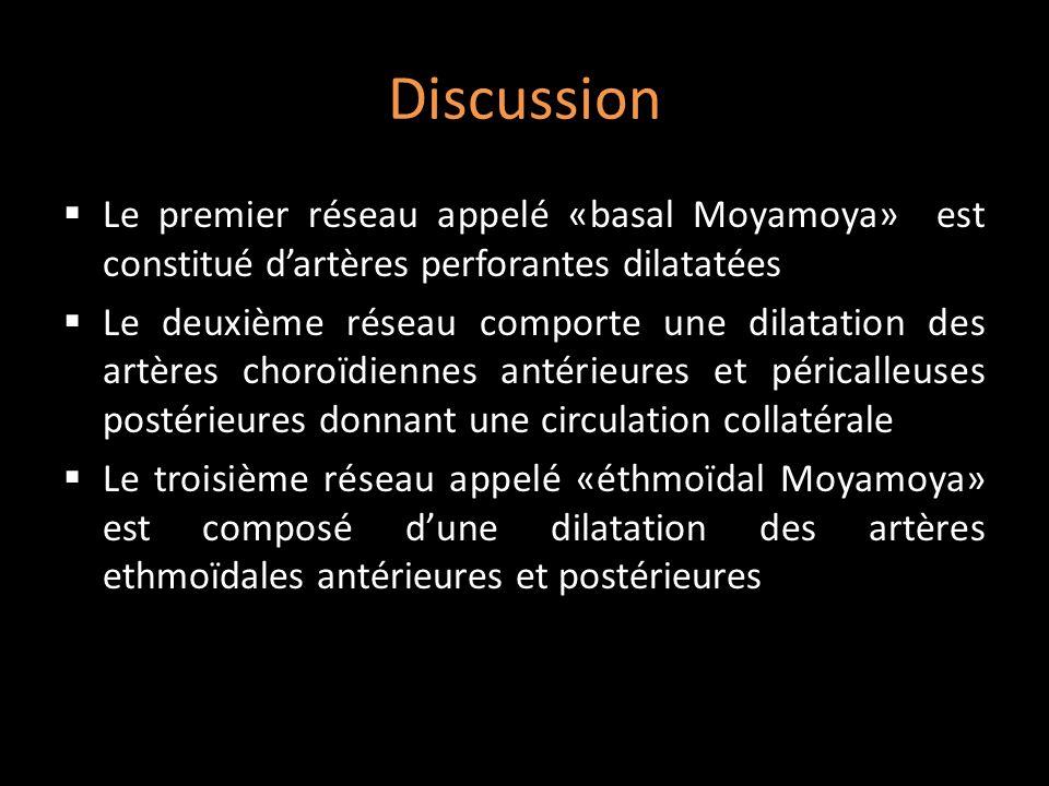 Discussion Le premier réseau appelé «basal Moyamoya» est constitué dartères perforantes dilatatées Le deuxième réseau comporte une dilatation des artè