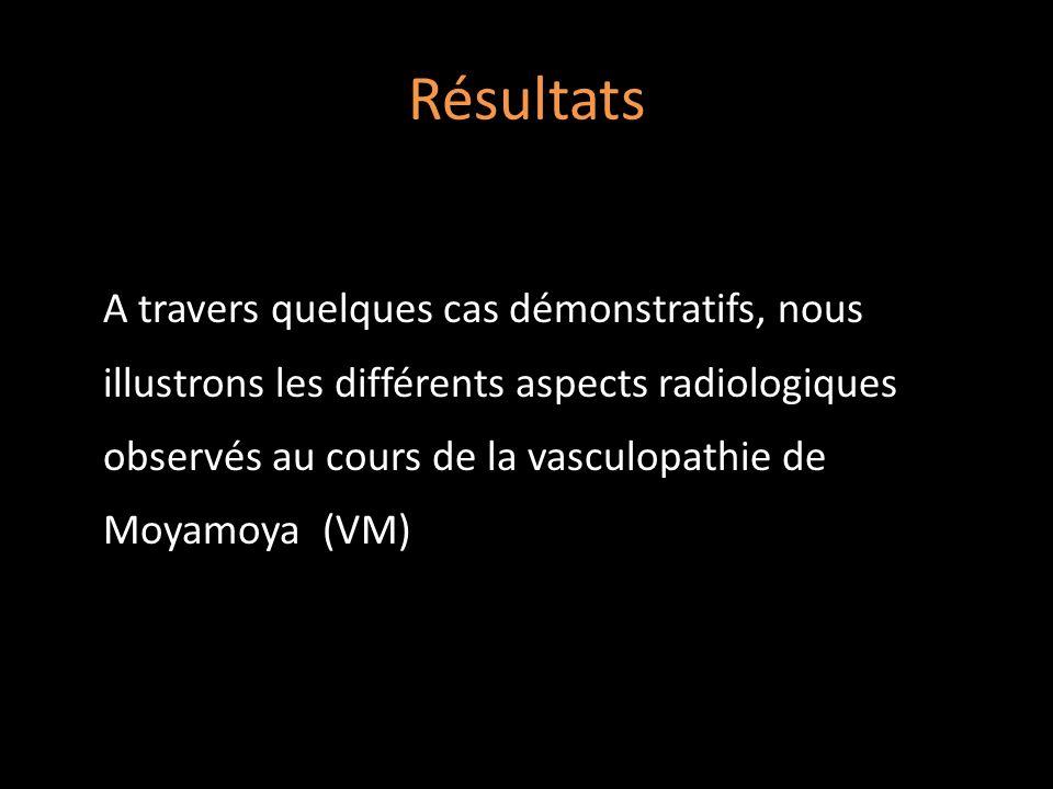 Résultats A travers quelques cas démonstratifs, nous illustrons les différents aspects radiologiques observés au cours de la vasculopathie de Moyamoya