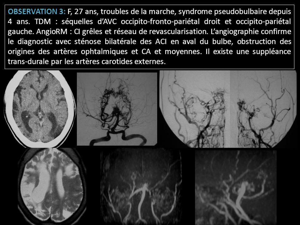 OBSERVATION 3: F, 27 ans, troubles de la marche, syndrome pseudobulbaire depuis 4 ans. TDM : séquelles dAVC occipito-fronto-pariétal droit et occipito