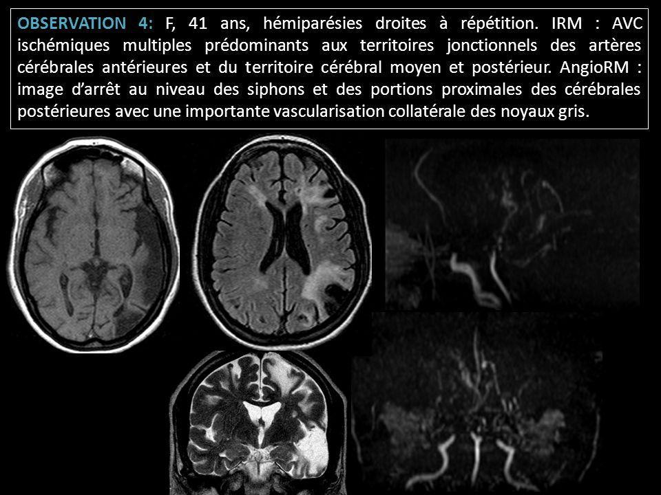 OBSERVATION 4: F, 41 ans, hémiparésies droites à répétition. IRM : AVC ischémiques multiples prédominants aux territoires jonctionnels des artères cér