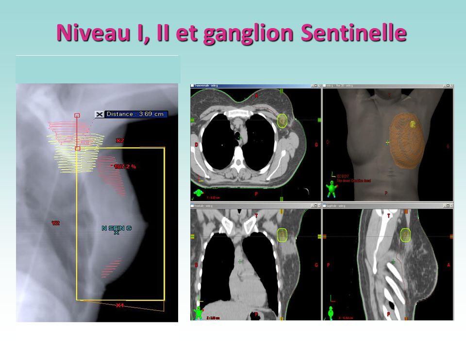 Niveau I, II et ganglion Sentinelle