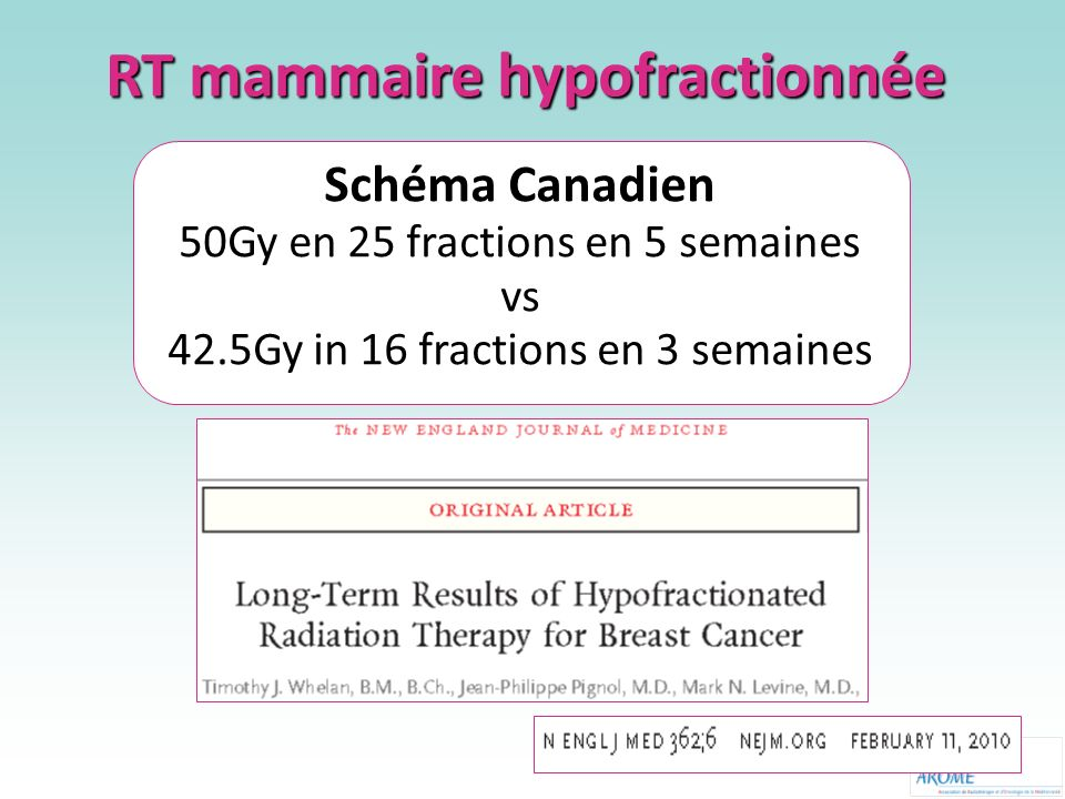 RT mammaire hypofractionnée Schéma Canadien 50Gy en 25 fractions en 5 semaines vs 42.5Gy in 16 fractions en 3 semaines