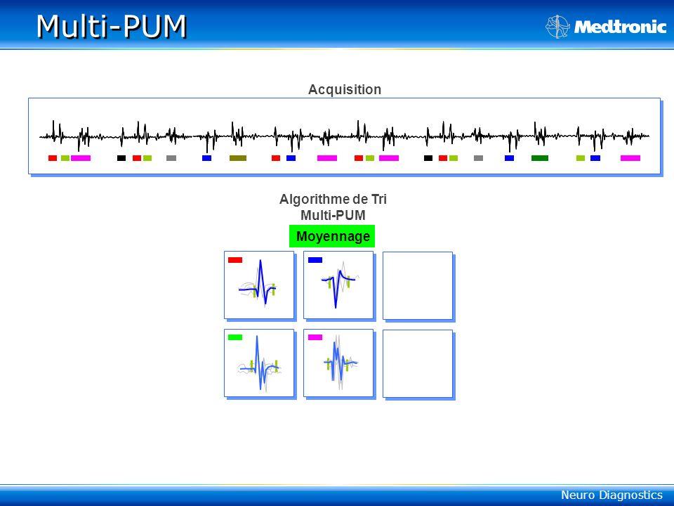 Neuro Diagnostics PUM 3 Methodes Multi-PUM : Reconnaissance automatique + Moyennage Déclenché : Isolation manuelle + Moyennage Manuelle : Sélection ma