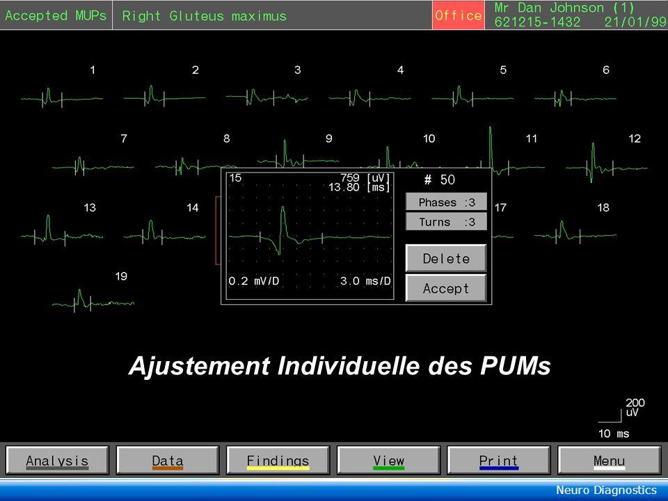 Neuro Diagnostics Keypoint ® Multi-MUPs Reconnaissance Automatique & Moyennage