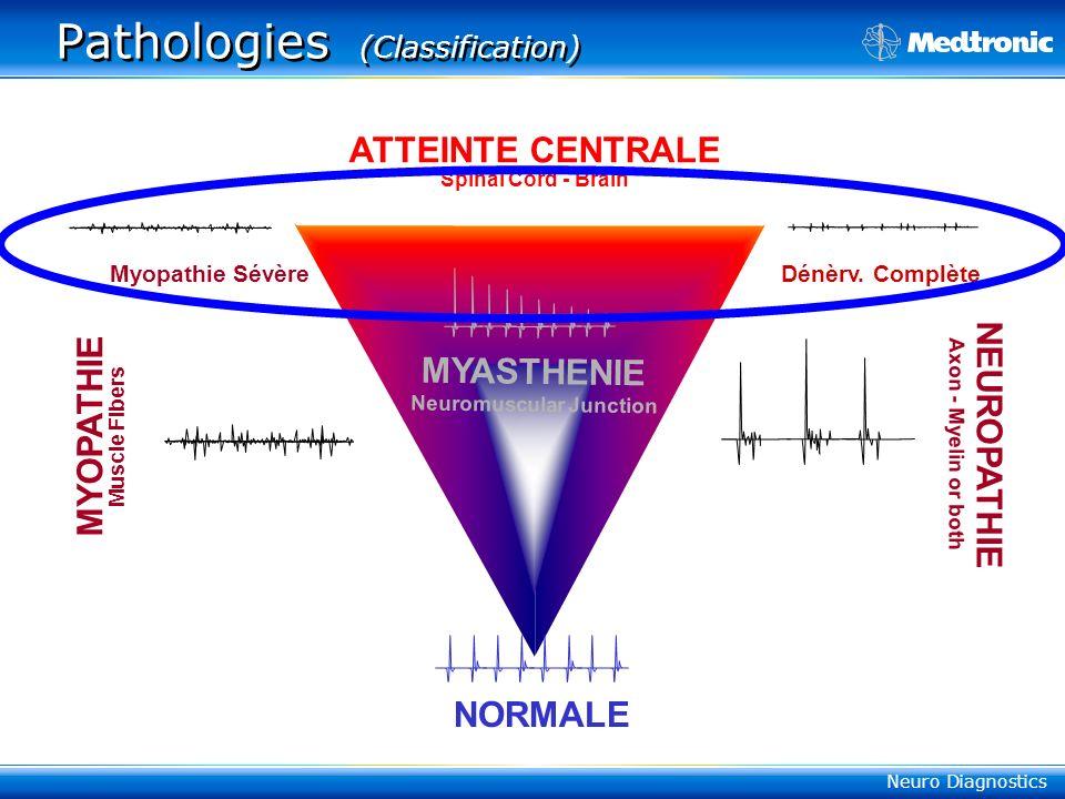Neuro Diagnostics Pathologies (Classification) NORMALE NEUROPATHIE Axon - Myelin or both MYASTHENIE Neuromuscular Junction MYOPATHIE Muscle Fibers Myopathie Sévère ATTEINTE CENTRALE Spinal Cord - Brain Dénèrv.