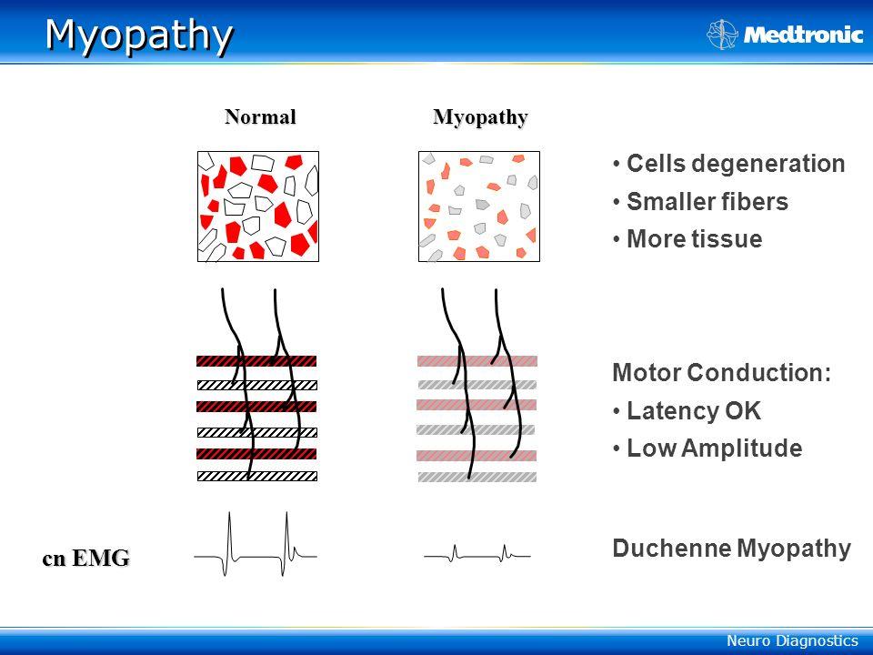 Neuro Diagnostics Myopathy cn EMG Normal Myopathy Cells degeneration Smaller fibers More tissue Motor Conduction: Latency OK Low Amplitude Duchenne Myopathy