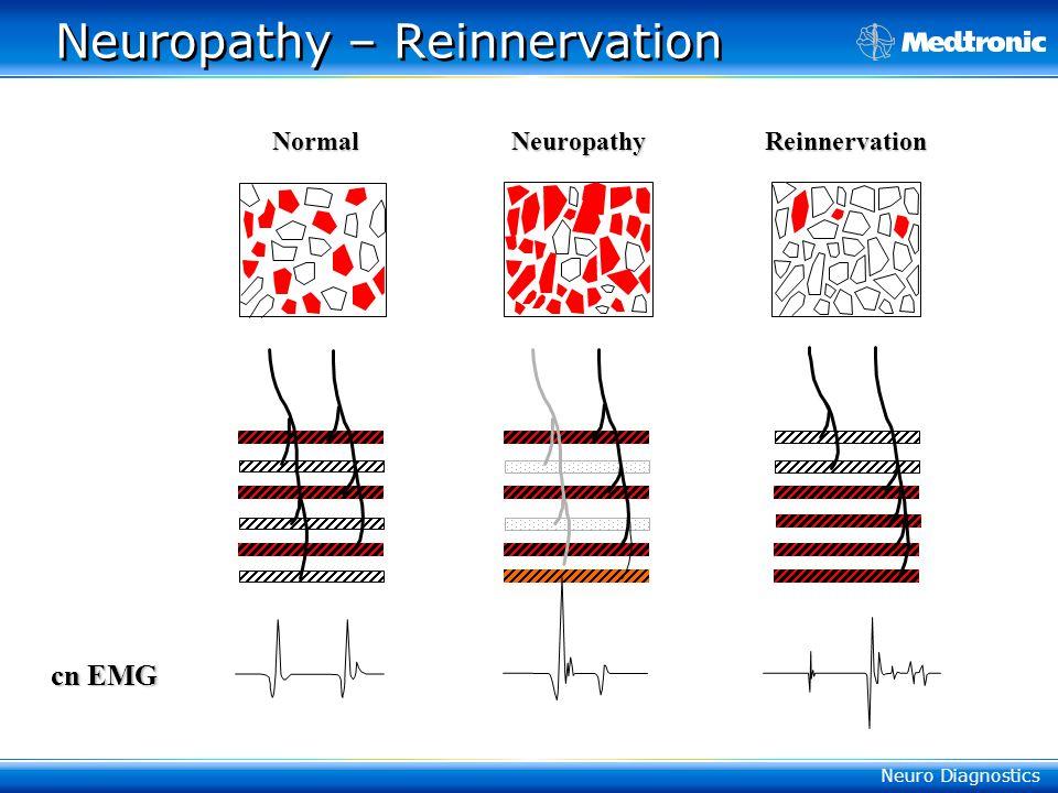 Neuro Diagnostics Neuropathy – Reinnervation Normal Neuropathy Reinnervation cn EMG