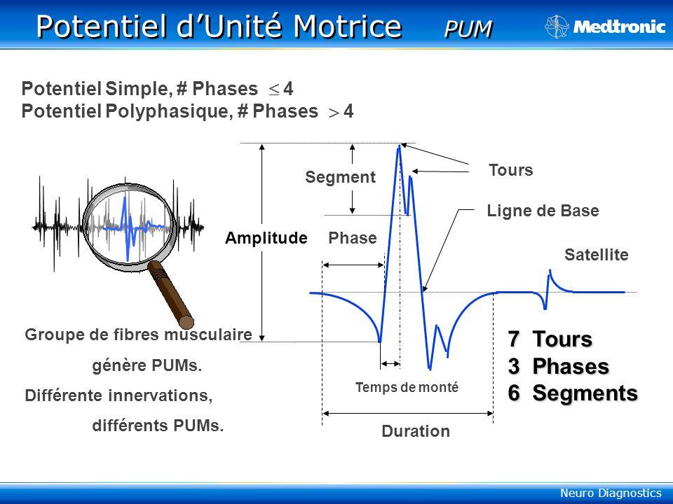 Neuro Diagnostics Potentiel dUnité Motrice PUM 7 Tours 3 Phases 6 Segments AmplitudePhase Duration Temps de monté Satellite Tours Ligne de Base Segment Potentiel Simple, # Phases 4 Potentiel Polyphasique, # Phases 4 Groupe de fibres musculaire génère PUMs.
