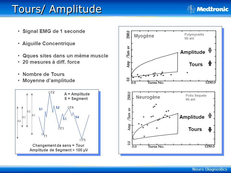 Neuro Diagnostics Keypoint ® MUPs Data Simple Polyphasique Moyenne Amplitude/ Durée Potentiels/ Amplitude Potentiels/ Durée S.I.= Size Index Normal value –1 - +1 S.I.= 2 x log(ampl) + (surface/ampl) Myogène, SI > + 1 Neurogène, SI < - 1