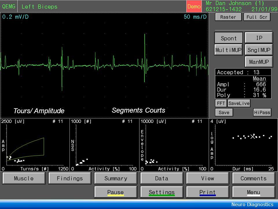 Neuro Diagnostics Segments Couts/ Amplitude/ Activité Myopathy Neuropathy Somme des périodes dactivité en % (ou ms) de lentier tracé SC Amplitude Duré