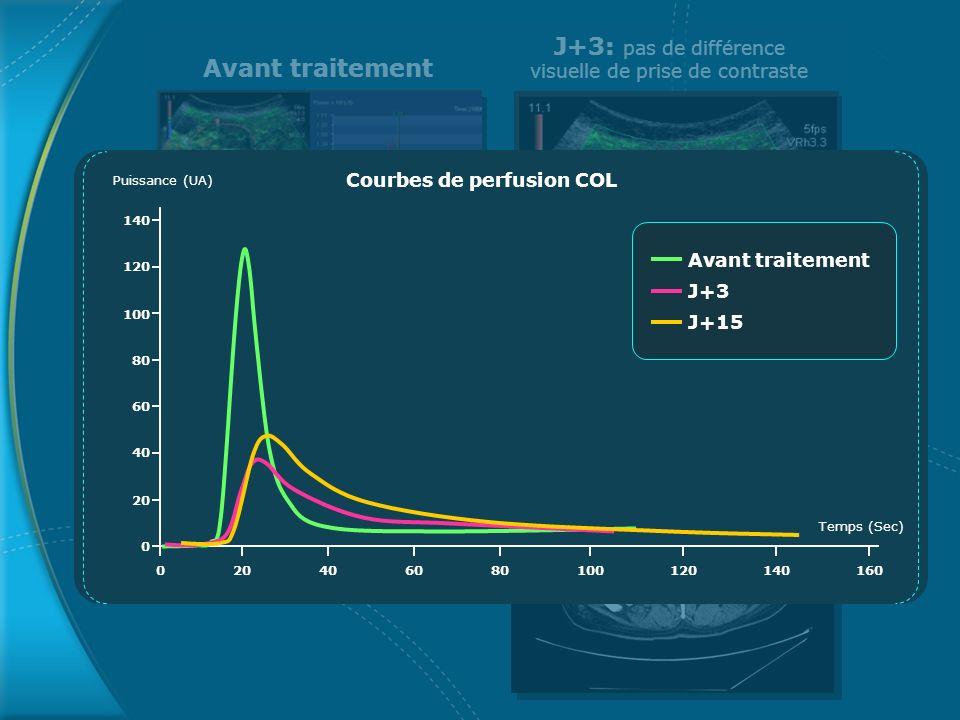 Avant traitement J+3: pas de différence visuelle de prise de contraste Courbes de perfusion COL Temps (Sec) Puissance (UA) 0 20 40 60 80 100 120 140 0