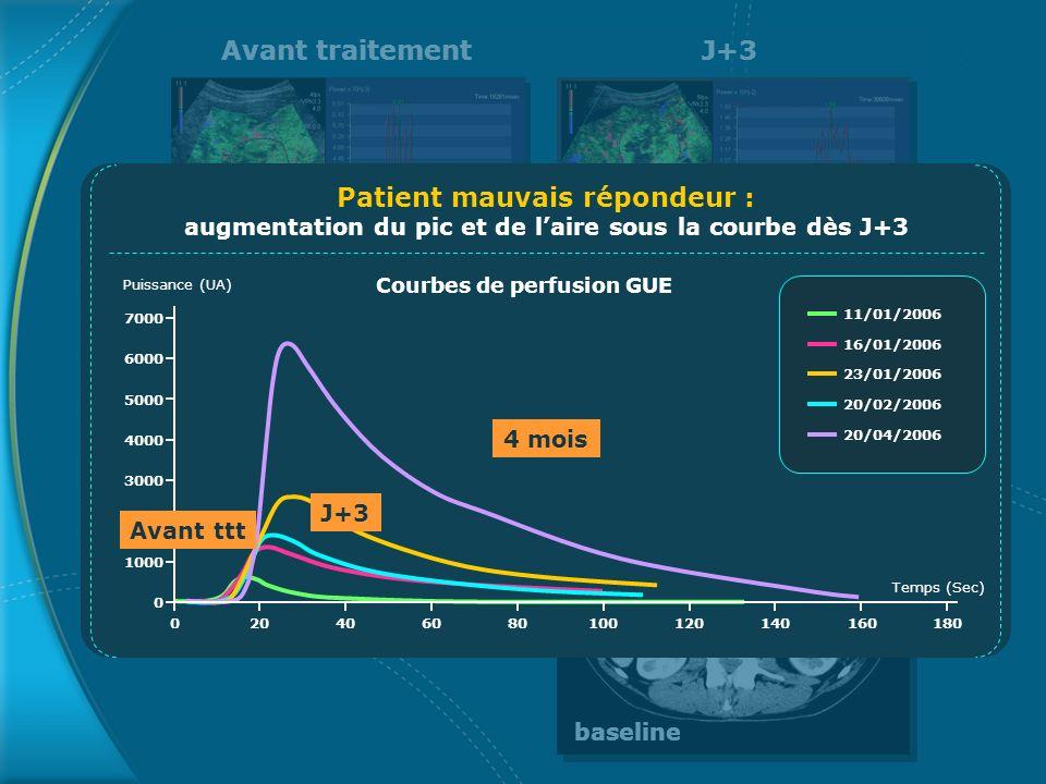 Avant traitementJ+3 baseline Courbes de perfusion GUE 0 1000 2000 3000 4000 5000 6000 7000 020406080100120140160180 Temps (Sec) Puissance (UA) Patient