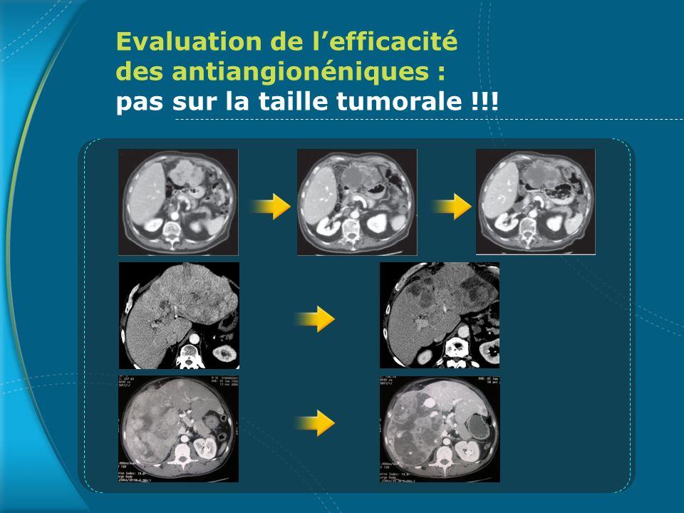 Bevacizumab : principales toxicités sur les 30 premiers pts traités Toxicité par patient (classification NCI-CTC) Grade 1-2Grade 3-4 Hypertension artérielle 61 Epistaxis 110 Protéinurie 31 Hémorragie digestive haute 12 Ascite hémorragique -1 Accident ischémique transitoire -1 Perforation digestive/ thrombose vasculaire -- Boige et al., ASCO 2007