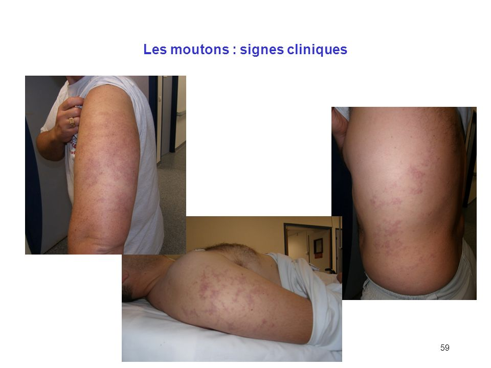 58 Classification des ADD Type I (« bénins ») –Asthénie intense –Cutanés (30% des ADD) –Ostéo-articulaires et musculaires (bends) Type II (« graves »)