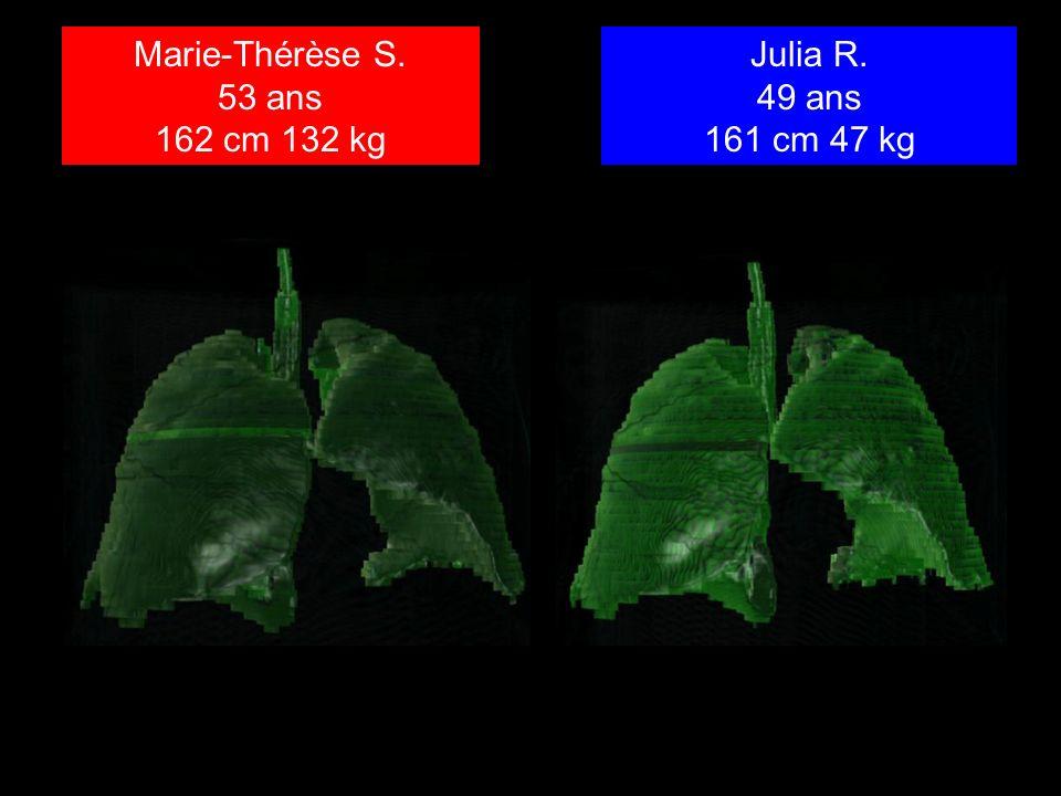 Marie-Thérèse S. 53 ans 162 cm 132 kg Julia R. 49 ans 161 cm 47 kg