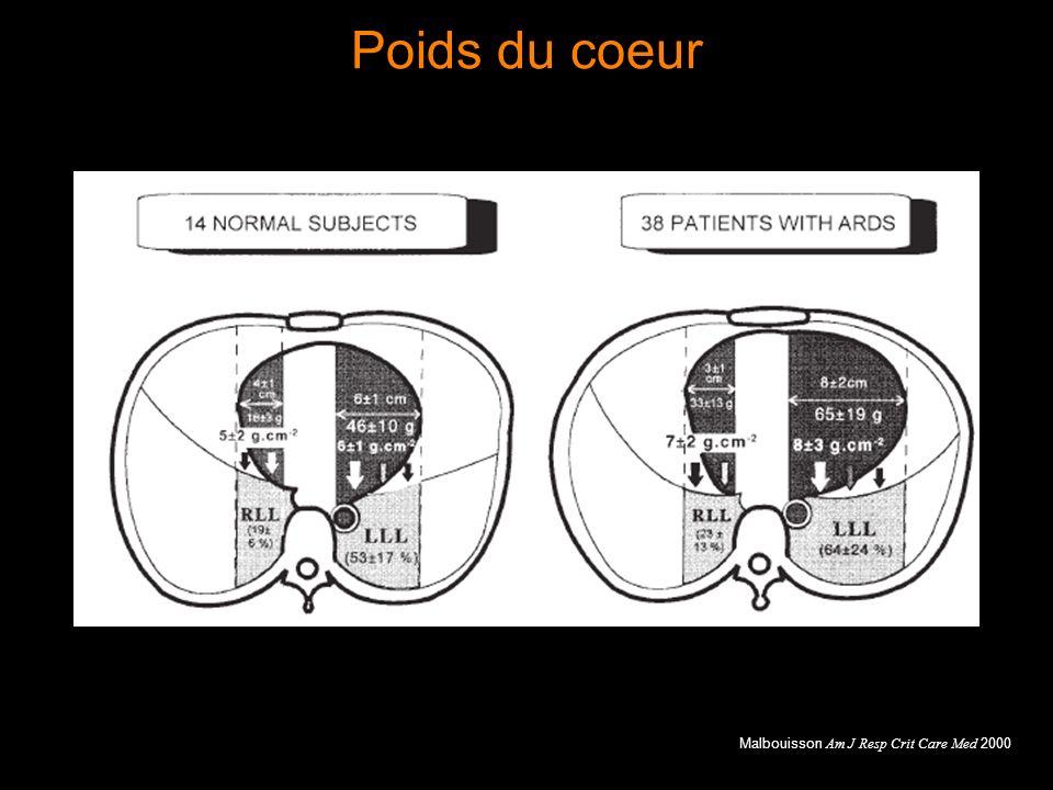 Poids du coeur Malbouisson Am J Resp Crit Care Med 2000