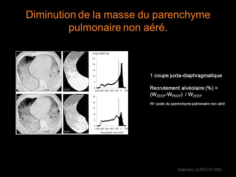Diminution de la masse du parenchyme pulmonaire non aéré. 1 coupe juxta-diaphragmatique Recrutement alvéolaire (%) = (W ZEEP -W PEEP ) / W ZEEP W= poi