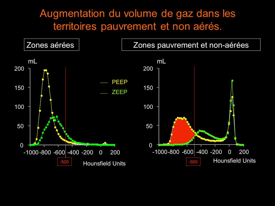 Comparaison des 2 méthodes Alveolar recruitment (%) (new method) -5050100150200 Alveolar recruitment (%) (Gattinoni s method) -100 -50 0 50 100 New method + Gattinoni s method (%) 2 -60-40-20020406080 New method - Gattinoni s method (%) -200 -100 0 100 200 mean + 2 S.D.