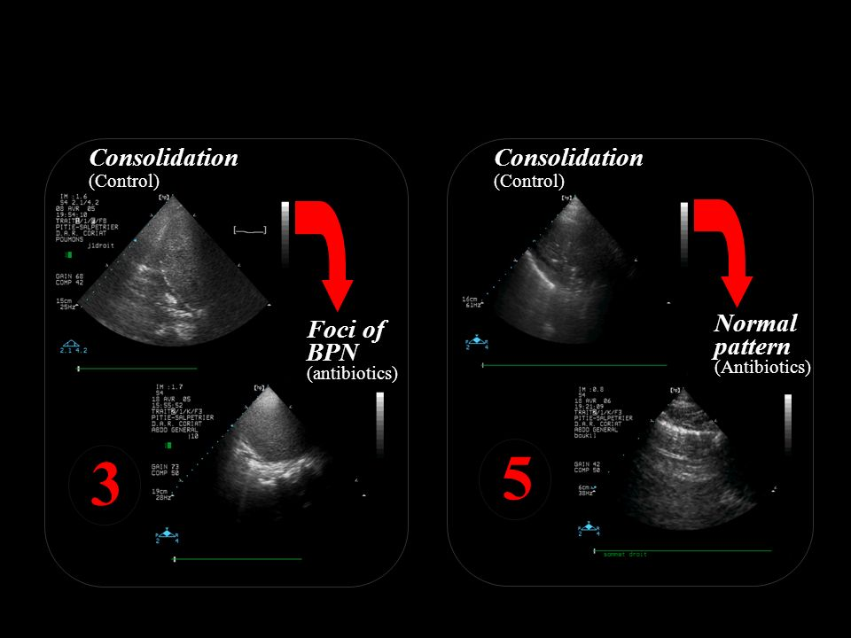 Ultrasound score is calculated for 12 compartments Foci of BPN (antibiotics) 3 Normal pattern (Antibiotics) Consolidation (Control) 5 Consolidation (C