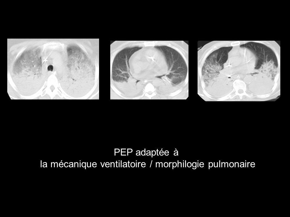 PEP adaptée à la mécanique ventilatoire / morphilogie pulmonaire