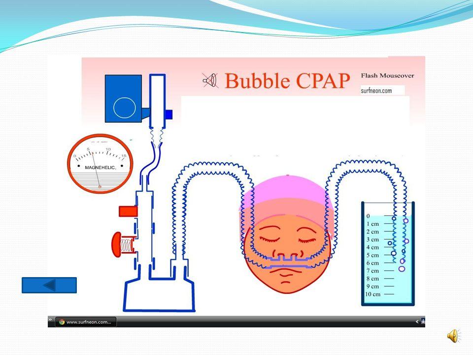Comment produire une nCPAP.