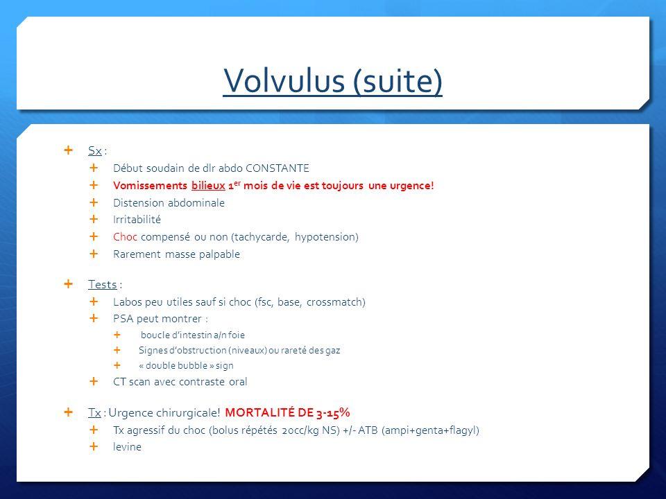 Volvulus (suite) Sx : Début soudain de dlr abdo CONSTANTE Vomissements bilieux 1 er mois de vie est toujours une urgence! Distension abdominale Irrita