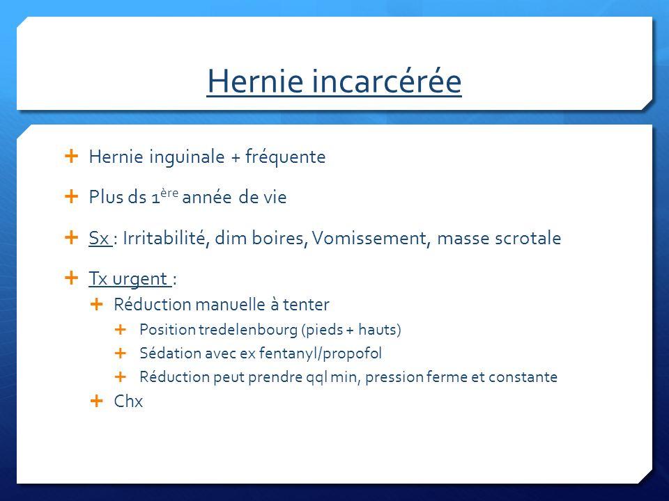 Hernie incarcérée Hernie inguinale + fréquente Plus ds 1 ère année de vie Sx : Irritabilité, dim boires, Vomissement, masse scrotale Tx urgent : Réduc
