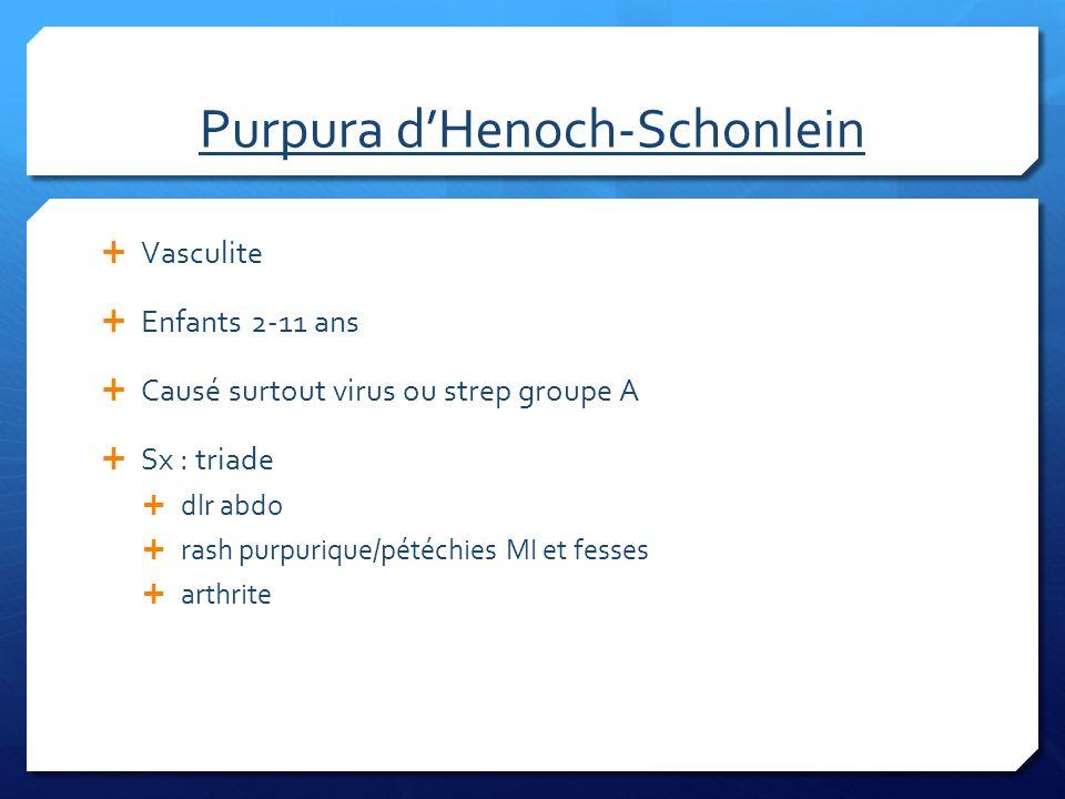 Purpura dHenoch-Schonlein Vasculite Enfants 2-11 ans Causé surtout virus ou strep groupe A Sx : triade dlr abdo rash purpurique/pétéchies MI et fesses