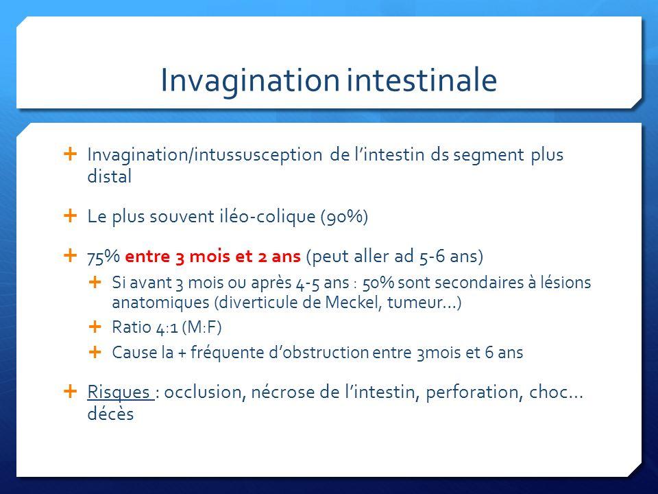 Invagination intestinale Invagination/intussusception de lintestin ds segment plus distal Le plus souvent iléo-colique (90%) 75% entre 3 mois et 2 ans