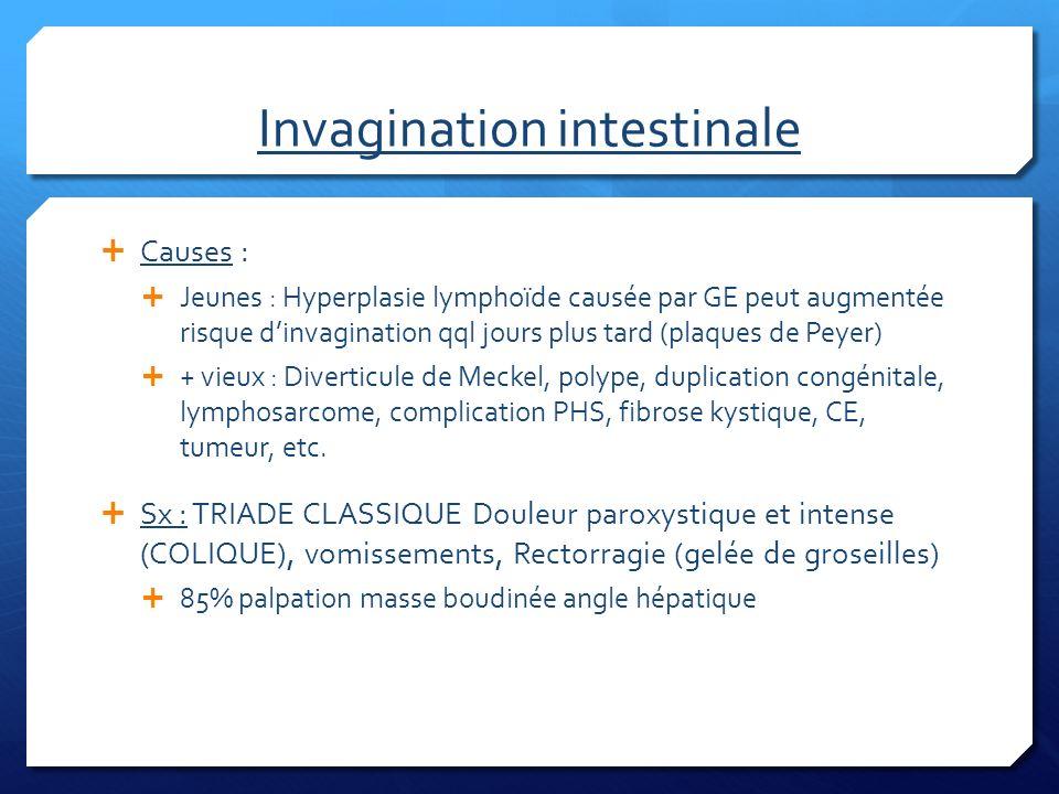 Invagination intestinale (suite) Pas de labo dx, sauf TR et guaic R-X : zone déshabitée sous le foie, distension grêle, niveaux si occlusion Echo : sensible et spécifique Tx : Volume (20cc/kg NS), atb si AEG (ampi+genta+clinda OU flagyl), transfert pour endoscopie (réduction eau ou au gaz, pas de barium vu risque perforation) vs Chx si perforée ou compliquée Récidive 5-10% donc observe 48 hrs
