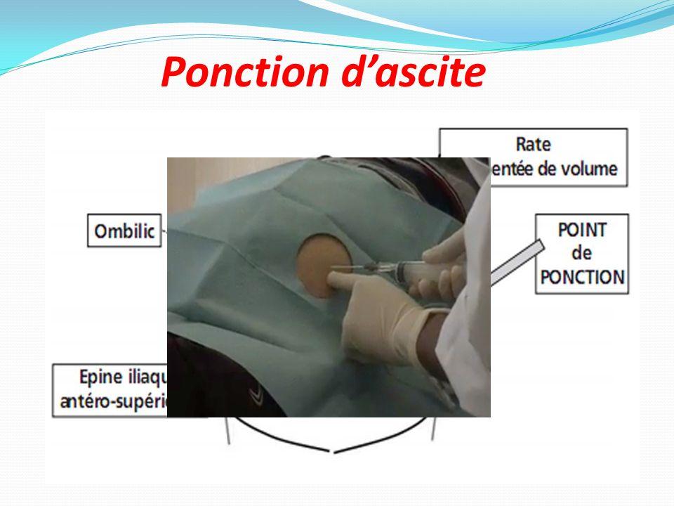 Ponction dascite