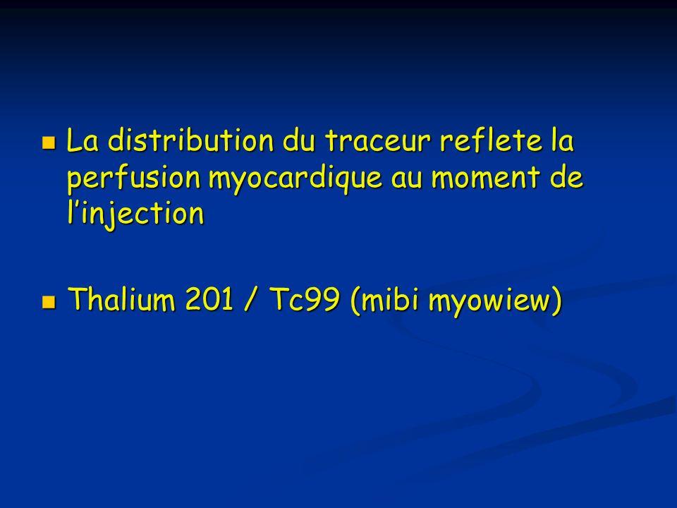La distribution du traceur reflete la perfusion myocardique au moment de linjection La distribution du traceur reflete la perfusion myocardique au mom
