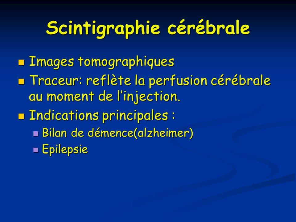 Scintigraphie cérébrale Images tomographiques Images tomographiques Traceur: reflète la perfusion cérébrale au moment de linjection. Traceur: reflète