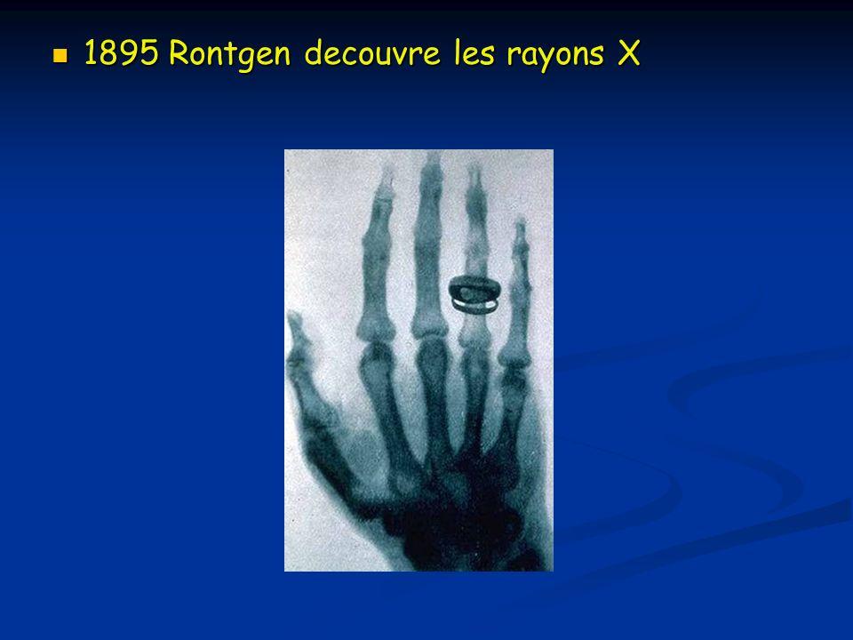 1895 Rontgen decouvre les rayons X