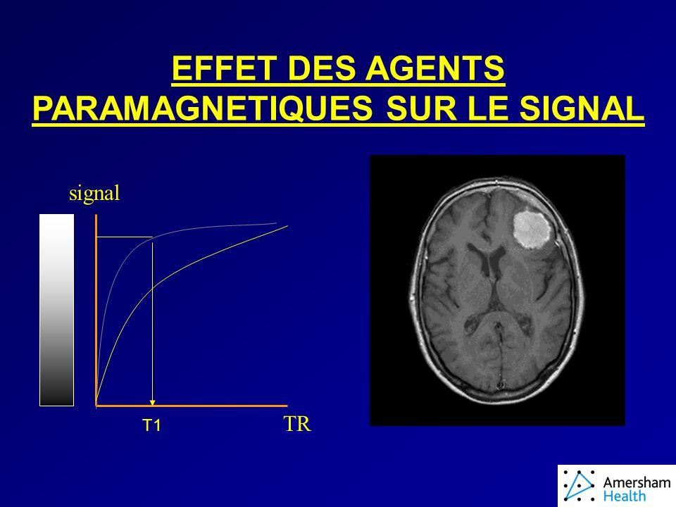 EFFET DES AGENTS PARAMAGNETIQUES SUR LE SIGNAL signal TR T1