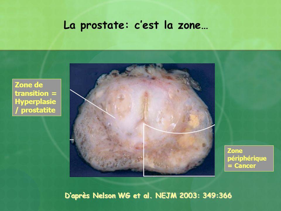 Daprès Nelson WG et al. NEJM 2003: 349:366 Daprès Nelson WG et al. NEJM 2003: 349:366 La prostate: cest la zone… Zone de transition = Hyperplasie / pr